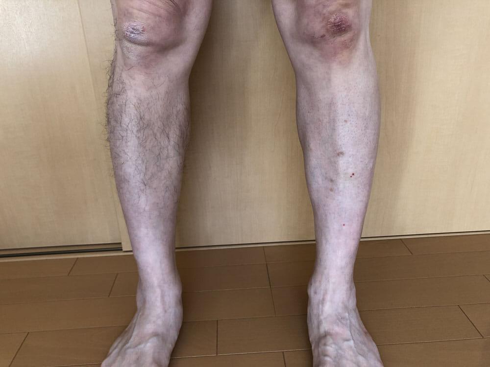 メンズ向けおすすめ脱毛・除毛グッズ「プレミアムリムーバー グート」|左右の脚を見比べてみてください。 あまり毛深い方ではない僕の脚でさえ、雲泥の差ですね。