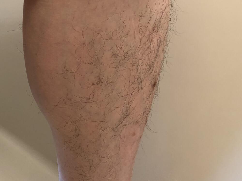 男のムダ毛処理におすすめのボディトリマーER-GK60レビュー|今回はすね毛で検証してみたいと思います。 大変お見苦しくて恐縮ですが、これがグルーミング前の状態です。