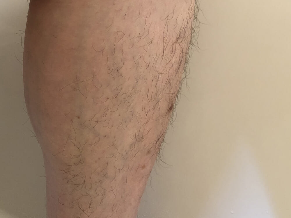 男のムダ毛処理におすすめのボディトリマーER-GK60レビュー|長さそろえアタッチメント(6mm)でグルーミングした状態