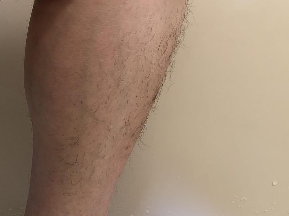 男のムダ毛処理におすすめのボディトリマーER-GK60レビュー|男のムダ毛処理におすすめのボディトリマーER-GK60レビュー|長さそろえアタッチメント(6mm)でグルーミングした状態でグルーミングした状態。