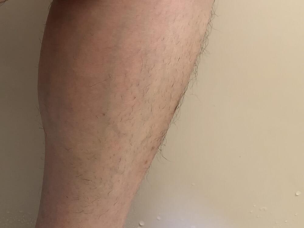 男のムダ毛処理におすすめのボディトリマーER-GK60レビュー|男のムダ毛処理におすすめのボディトリマーER-GK60レビュー|肌ガードアタッチメント(2mm)でグルーミングした状態。