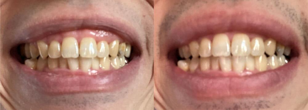 【フィリップス 電動歯ブラシ ソニッケアーレビュー】安価な電動歯ブラシ「イージークリーン」でホワイトニング効果は十分|上位機種との比較や使い方も解説|【効果検証】2週間チャレンジ