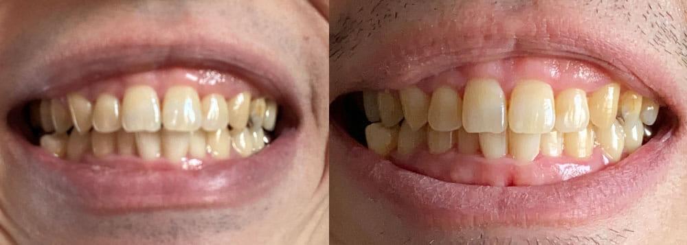 【フィリップス 電動歯ブラシ ソニッケアーレビュー】安価な電動歯ブラシ「イージークリーン」でホワイトニング効果は十分|上位機種との比較や使い方も解説|【効果検証】2週間チャレンジ:使用前と使用10日後を比較