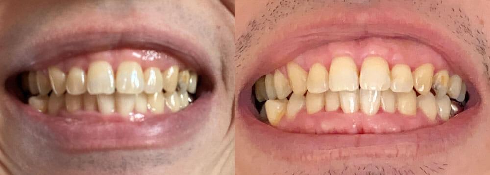 【フィリップス 電動歯ブラシ ソニッケアーレビュー】安価な電動歯ブラシ「イージークリーン」でホワイトニング効果は十分|上位機種との比較や使い方も解説|【効果検証】2週間チャレンジ:使用前と使用14日後を比較