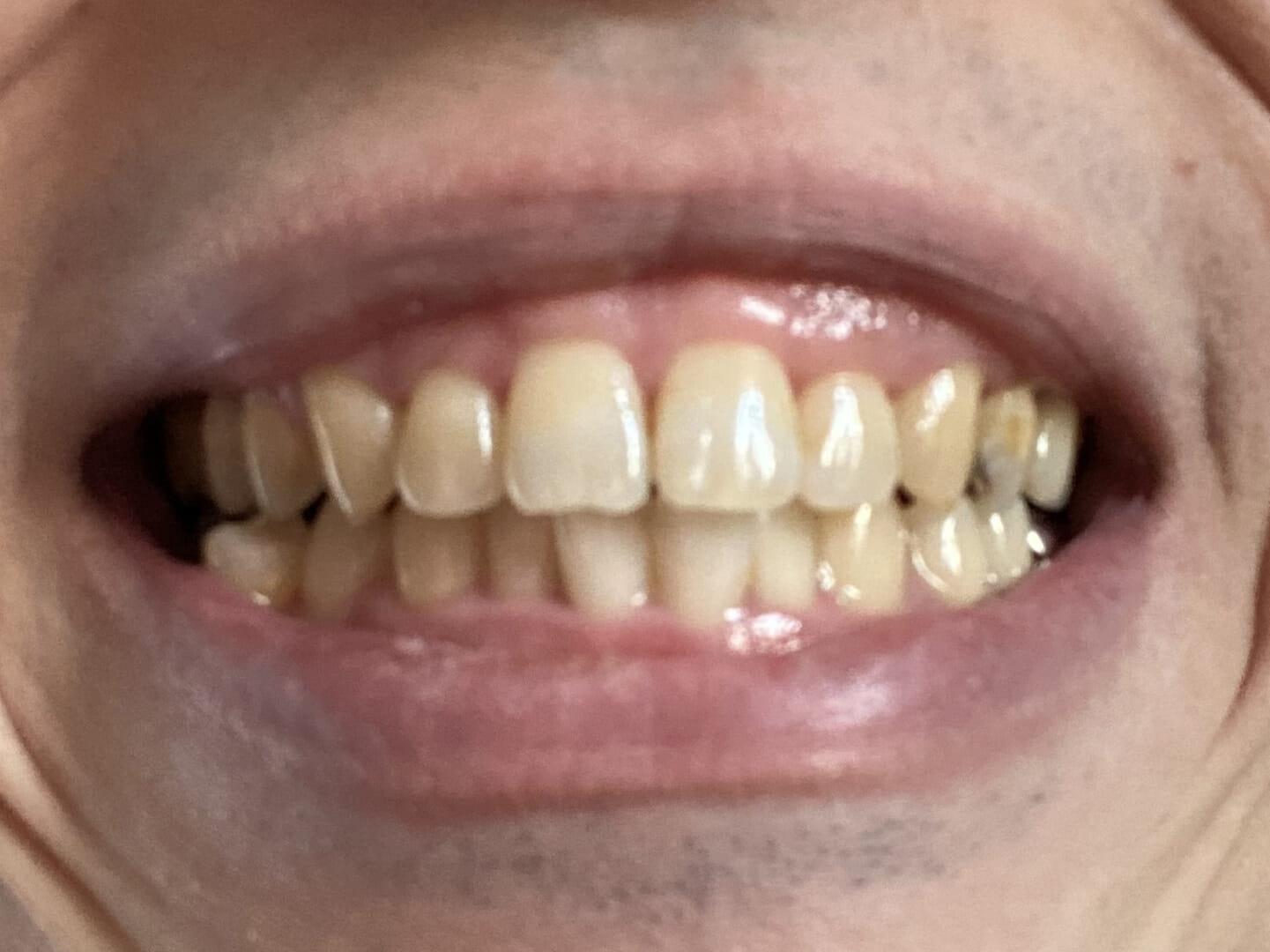 【フィリップス 電動歯ブラシ ソニッケアーレビュー】安価な電動歯ブラシ「イージークリーン」でホワイトニング効果は十分|上位機種との比較や使い方も解説|【効果検証】2週間チャレンジ:使用前
